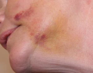Bruising from being punched